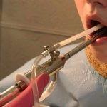промывание лакун миндалин