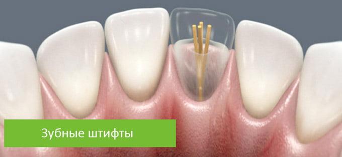 зубные штифты
