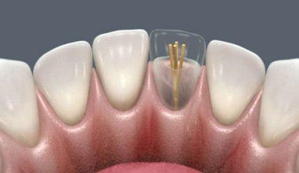 Использование зубных штифтов в стоматологии
