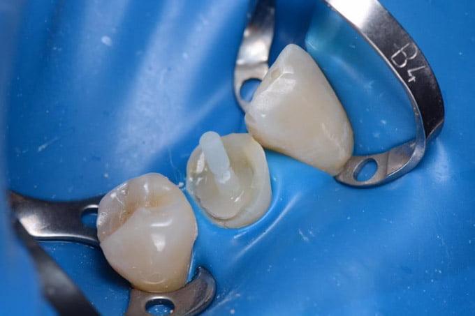 штифт в зубном канале