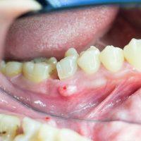Лечение разных видов воспаления надкостницы зуба