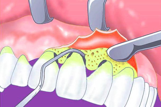 воспаление надкостницы после удаления зуба мудрости