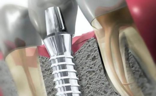 Импланты зубов: виды, выбор, как ставят и удаляют имплант. Лучшие производители.